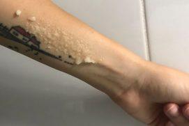 Soľný peeling aplikácia - recenzia