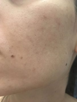 Pred použitím makeup-u