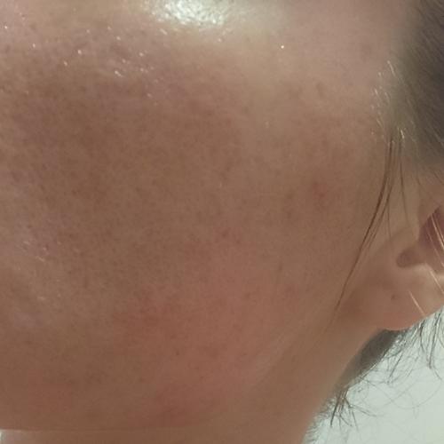 Revolution skincare chemicky peeling skúsenosti