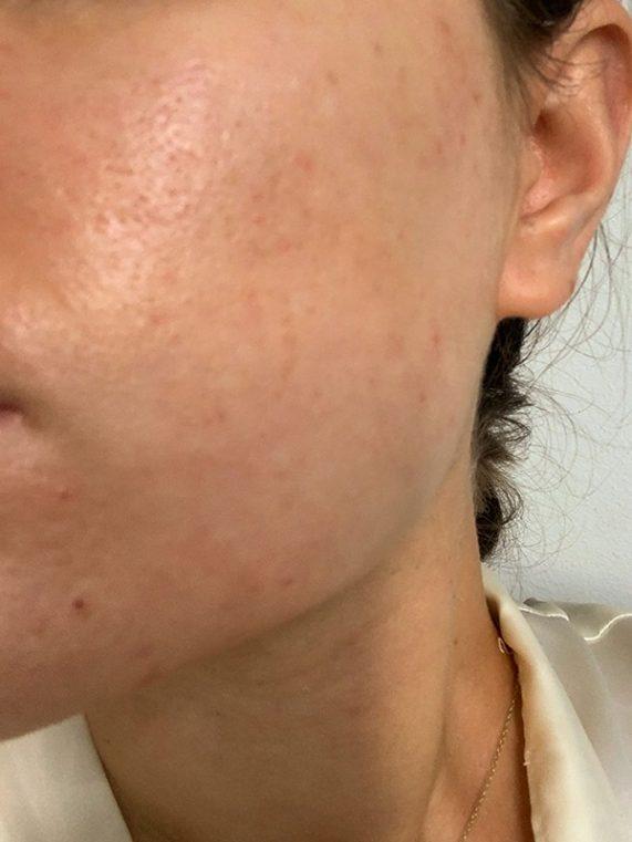 revolution skin care sérum proti pigmentovým škvrnám skúsenosti test pred a po